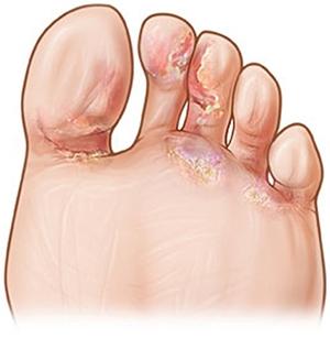 ноги грибковая инфекция Gehwol